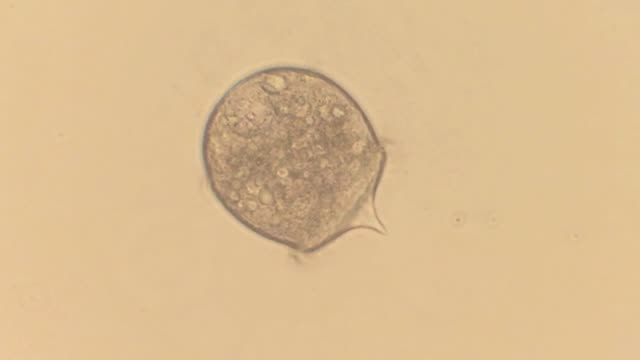 didinium nasutum - animale microscopico video stock e b–roll