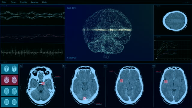 digital technology user interface. brain scanning - infectious disease stock videos & royalty-free footage