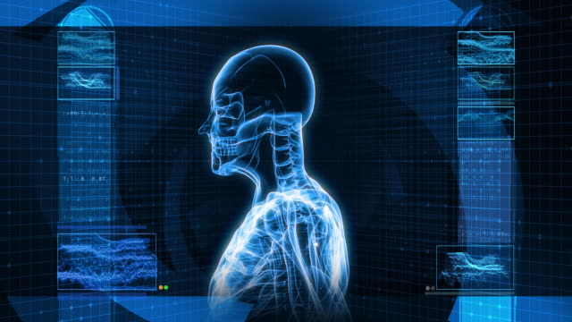 digital x-ray scan of human (hd) - medical x ray stock videos and b-roll footage