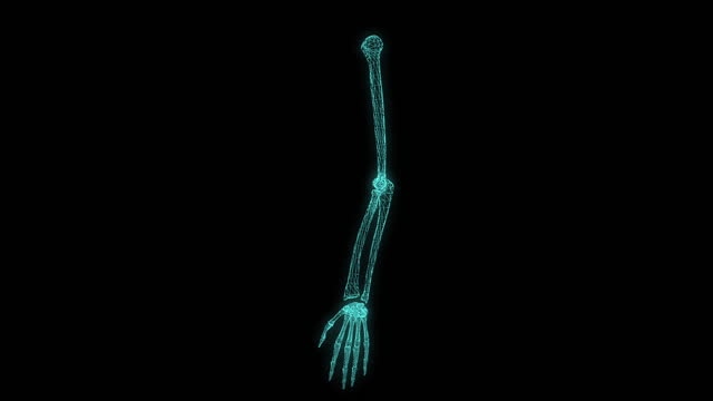 digitally enhanced video footage of an xray-scanned human arm - human arm stock videos & royalty-free footage