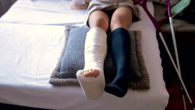 disabled woman with broken leg and plaster foot at home close up - broken leg stock videos & royalty-free footage