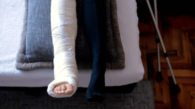 disabled woman with broken leg and plaster foot at home close up - bandage stock videos & royalty-free footage
