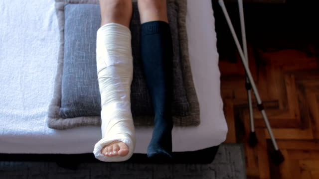 disabled woman with broken leg and plaster foot at home close up - plaster stock videos & royalty-free footage