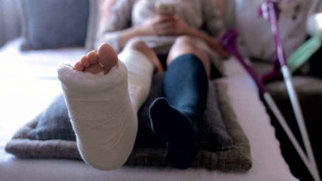 disabled woman with broken leg and plaster foot at home using smart phone - foot stock videos & royalty-free footage