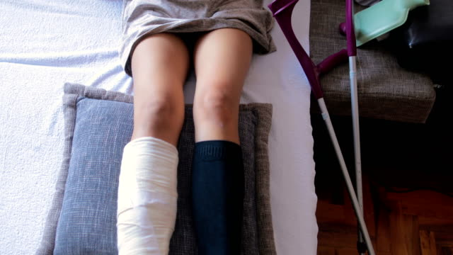 disabled woman with broken leg and plaster foot at home using smart phone - broken leg stock videos & royalty-free footage