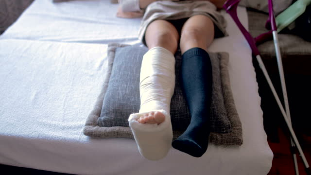 disabled woman with broken leg and plaster foot at home - leg stock videos & royalty-free footage