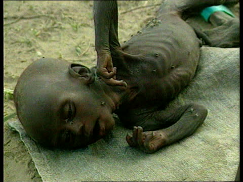 Famine LIB Men women and children affected by famine sat at refugee camp Emaciated child laying on blanket covered in flies Malnourished woman laying...