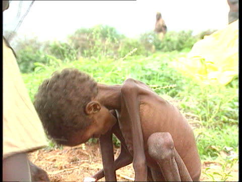 relief problem cms very thin child crouching on ground tms thin children sitting on ground as food ladled out ext tcms thin child lies down tcms thin... - bambina nuda video stock e b–roll