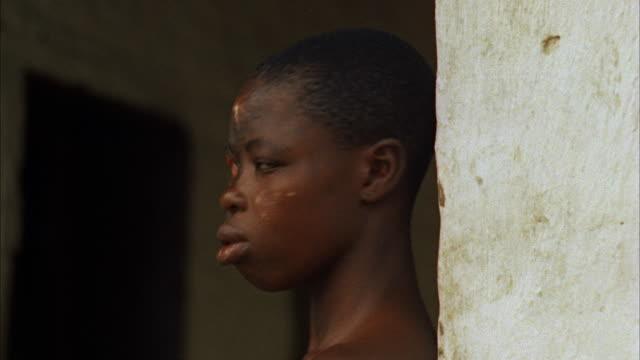 CU Disease ravage face of native boy