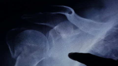 dislocated shoulder xray examine on tablet - injured stock videos & royalty-free footage