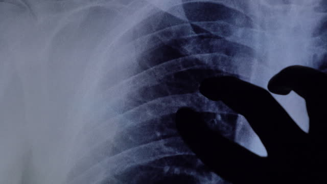 dislocated shoulder xray examine on tablet - radiographer stock videos & royalty-free footage