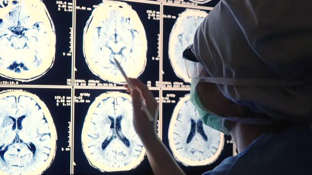 vidéos et rushes de médecin analysant l'irm sur un écran d'ordinateur - représentation féminine