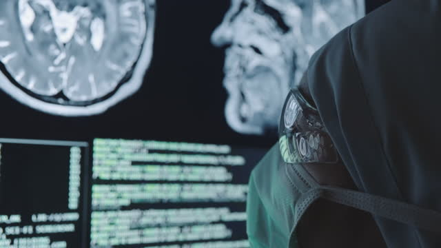 doctor analyzing on mri scan - x ray image stock videos & royalty-free footage