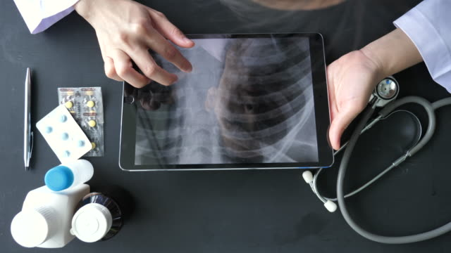 doctor analyzing x-ray images on tablet pc - aiming stock videos & royalty-free footage