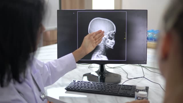 doctor and patient talking with x ray film - female doctor stock videos & royalty-free footage