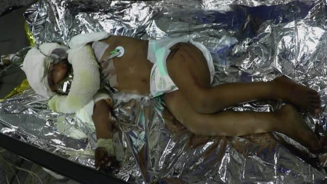 doctor checks an airstrike's child survivor who lies on a bed receiving treatment at a hospital after he survived airstrikes hit his house on 15,... - indigenous culture stock videos & royalty-free footage