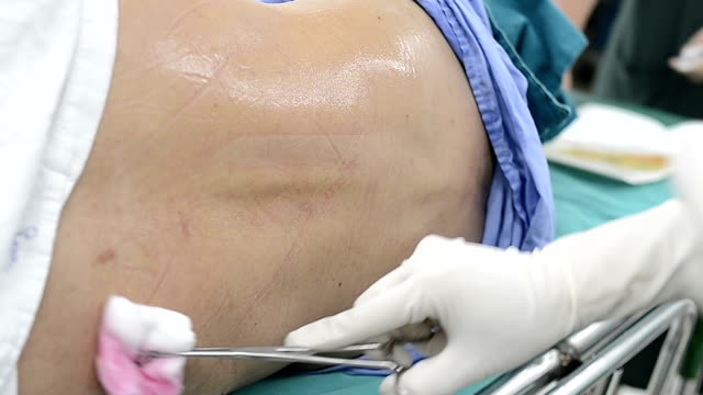 doctor cleaning before spinal block - medical procedure stock videos and b-roll footage