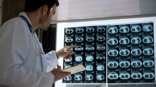 doctor examine x-ray film - radiographer stock videos & royalty-free footage