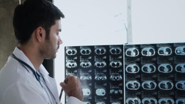 vídeos y material grabado en eventos de stock de el médico examina la película de rayos x - radiographer