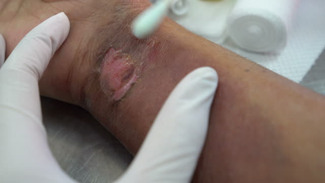 doctor examining burn on patient - wounded stock videos & royalty-free footage