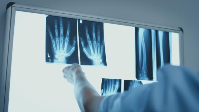病院で手のx線画像を検査する医師 - レントゲン点の映像素材/bロール