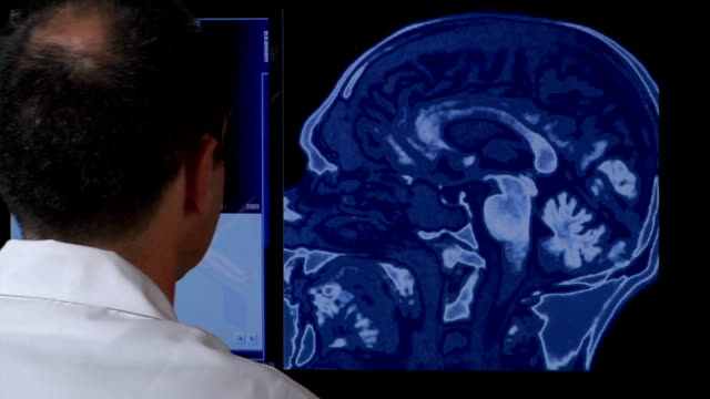 doctor examining medical scans - touch screen stock videos & royalty-free footage