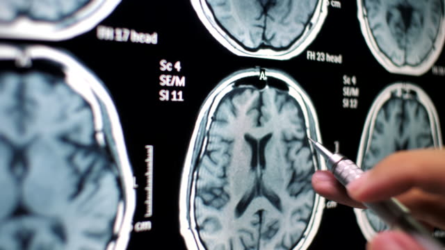 doctor examining on brain x-ray - tomography stock videos & royalty-free footage