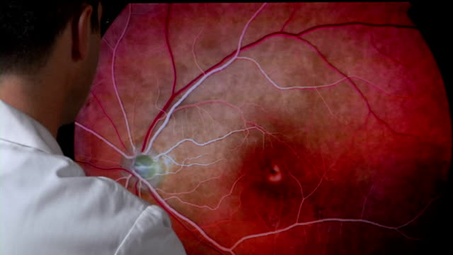 doctor examining retinal images - blood vessel stock videos & royalty-free footage