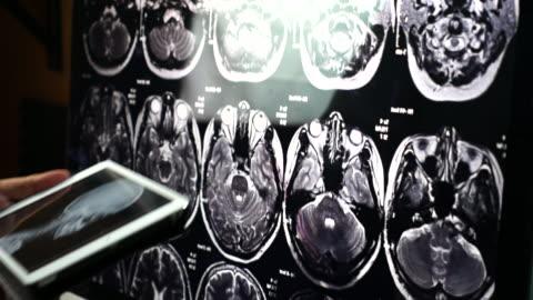 vídeos y material grabado en eventos de stock de exploración de rayos x del cerebro de scull de examen médico - enfermedad de alzheimer