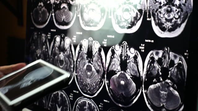 Doctor Examining scull brain X-ray scan