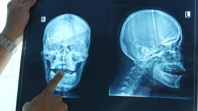 doctor examining skull scan on x-ray film - head stock videos & royalty-free footage
