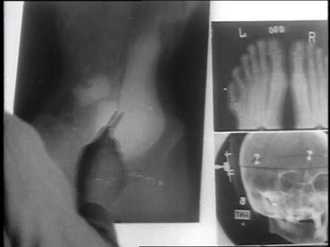 ms doctor examining xray films on lightbox / camp sherman chillicothe ohio united states - camp x ray stock videos & royalty-free footage