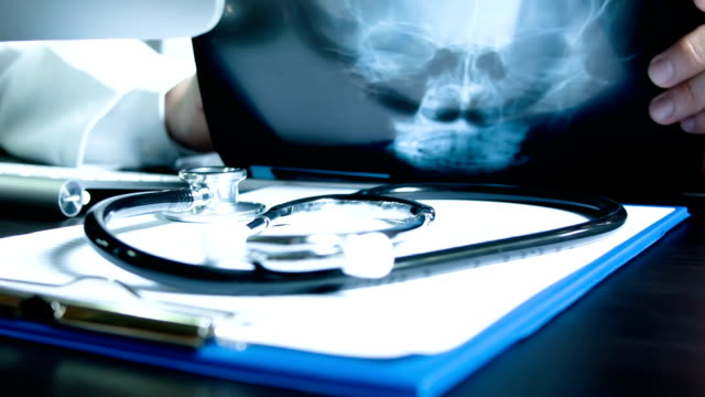 doctor examining x-ray of skull - skeleton sled stock videos and b-roll footage