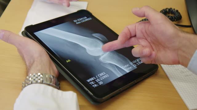 vídeos de stock e filmes b-roll de doctor explaining x-ray report on digital tablet - examining