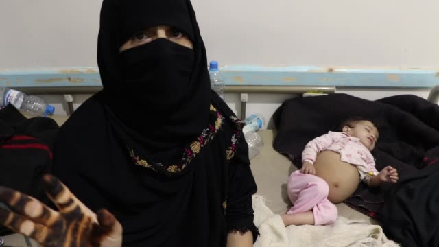 a doctor gives treatment for patients infected with cholera epidemic at a hospital on october 6 2018 in sana'a yemen the un says there are 22 million... - epidemic stock videos & royalty-free footage