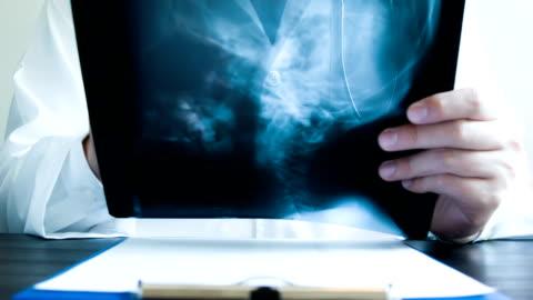 arzt hält x-ray - hüfte stock-videos und b-roll-filmmaterial