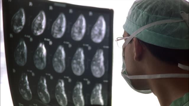 vídeos de stock e filmes b-roll de a doctor in a surgical mask looks at some x-rays. - bata cirúrgica