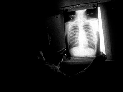 1935 MS doctor in dark room examining illuminated chest x-ray on viewing lamp/ AUDIO