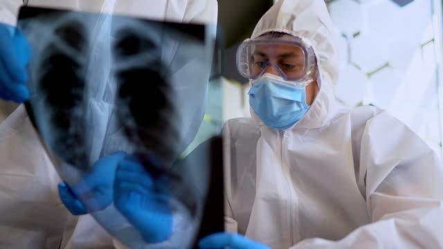 患者肺のx線を見て保護疫学的訴訟の医師 - レントゲン点の映像素材/bロール
