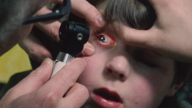 1983 montage doctor iona heath examines a young patient with an eye injury / london, england - boy medical exam stock videos and b-roll footage