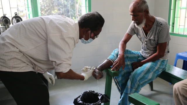 a doctor is disinfecting the leprosy wound of an elderly man in the hospice for people in poverty it is located in the northeast of india near the... - chirurgenkappe stock-videos und b-roll-filmmaterial