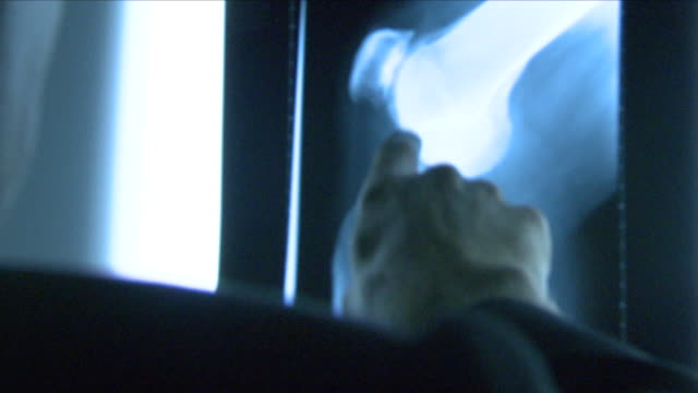 doctor looking at an x-ray - human leg stock videos & royalty-free footage