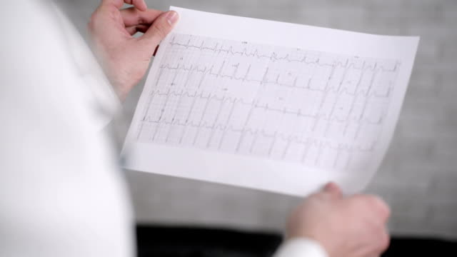 Läkaren tittar på EKG resultat.