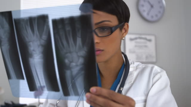 doctor looking at x-rays of broken wrist - giuntura umana video stock e b–roll