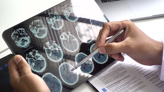 doctor looking brain x ray image on digital tablet - coat stock videos & royalty-free footage