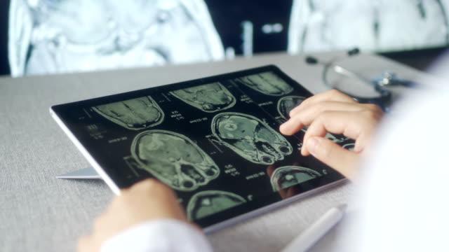 doctor looking ct examination image at computer monitor - medical record stock videos & royalty-free footage