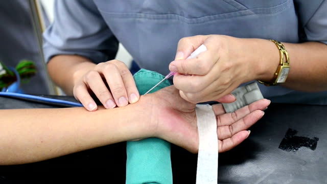doctor pucture radial artery for arterial line - radial artery stock videos & royalty-free footage