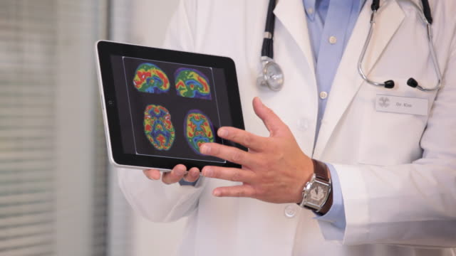 CU Doctor Showing Brain Scan Results on Tablet Computer / Richmond, Virginia, USA