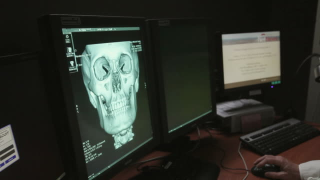 CU PAN Doctor studying patient scans on PACS (Picture archiving and communication system) display / Portland, Maine, USA