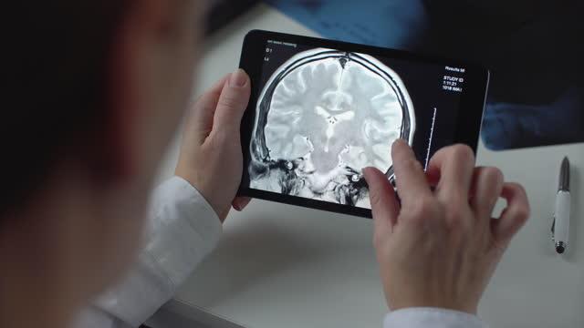 vídeos de stock, filmes e b-roll de médico usando tablet digital - tomografia